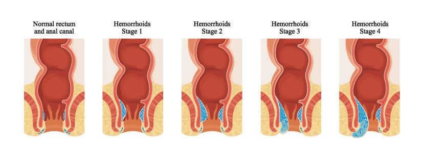 Βαθμοί Αιμορροϊδοπάθειας